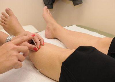 acupunctuur